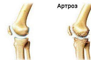 deteriorarea meniscului medial al genunchiului 3 grade