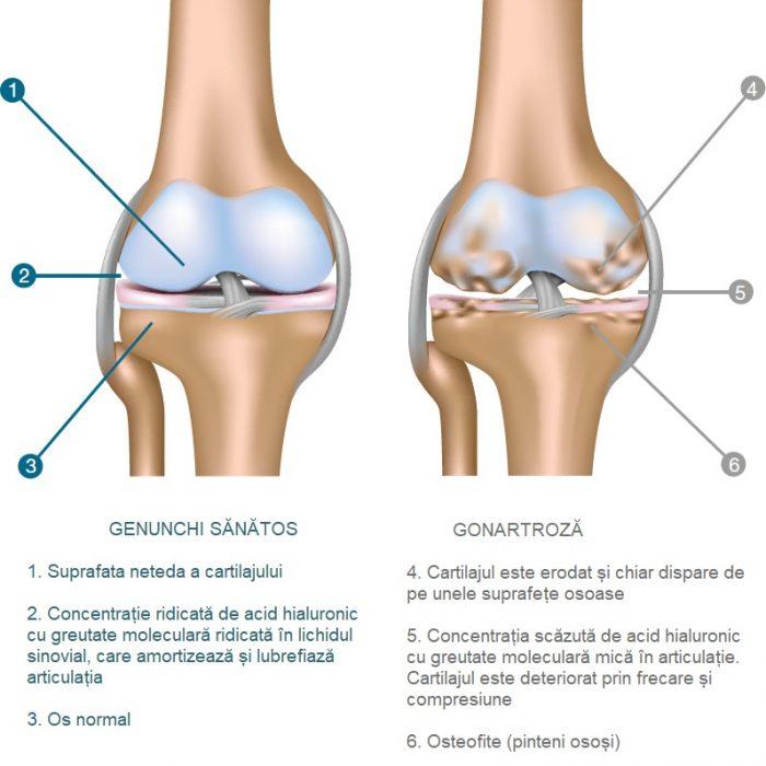 injecții pentru durere în articulațiile genunchiului cu eritem, dureri articulare