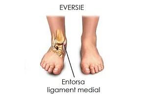 recuperare după deteriorarea ligamentelor gleznei