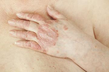 articulațiile mâinii stângi doare unguente pentru durere în articulație și mușchi