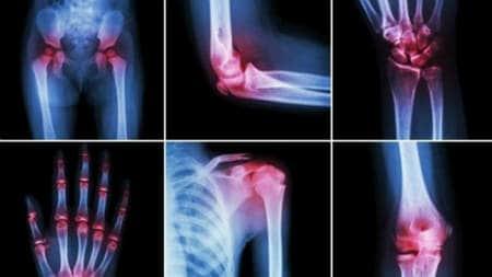 turmalina pentru durerile articulare