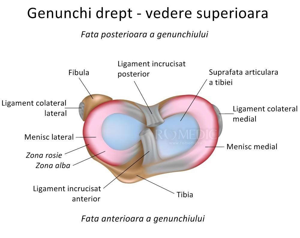 artroza șoldului sau coxartroza