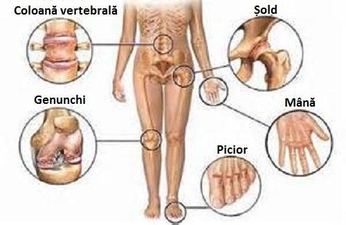 manifestări clinice ale bolilor articulare