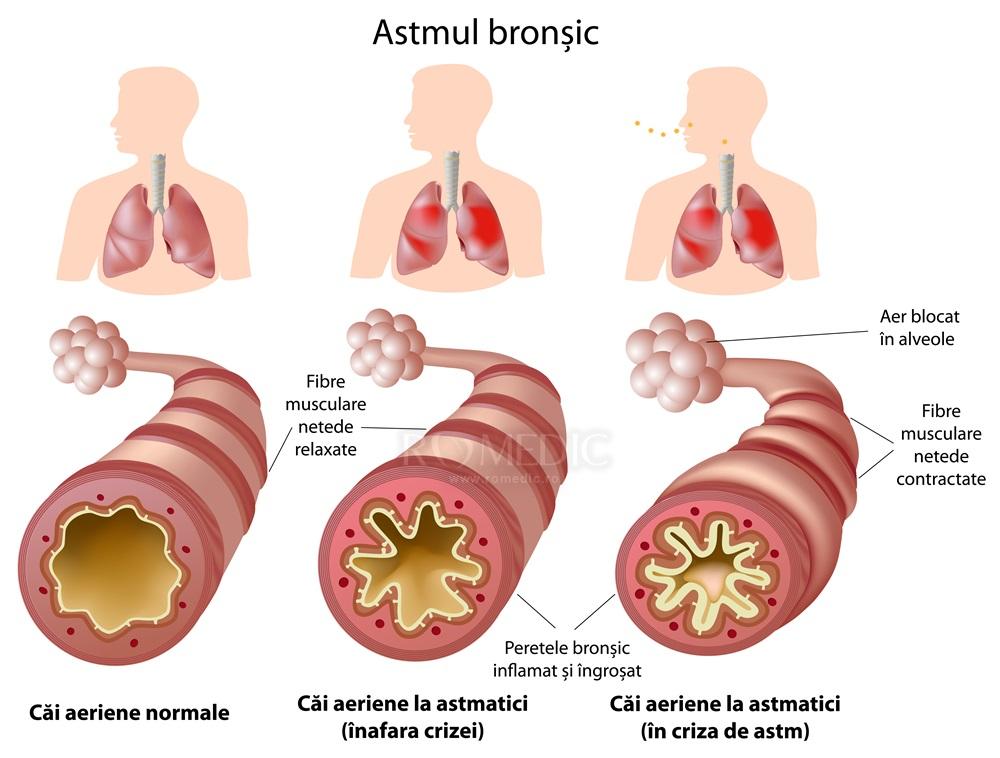 tratamentul bronhiilor și articulațiilor artrita durerii articulare a umărului