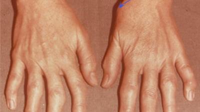 umflarea articulației umflate