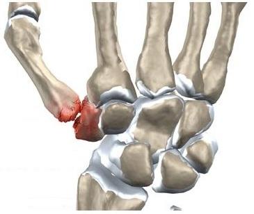 umflarea între articulațiile mâinii