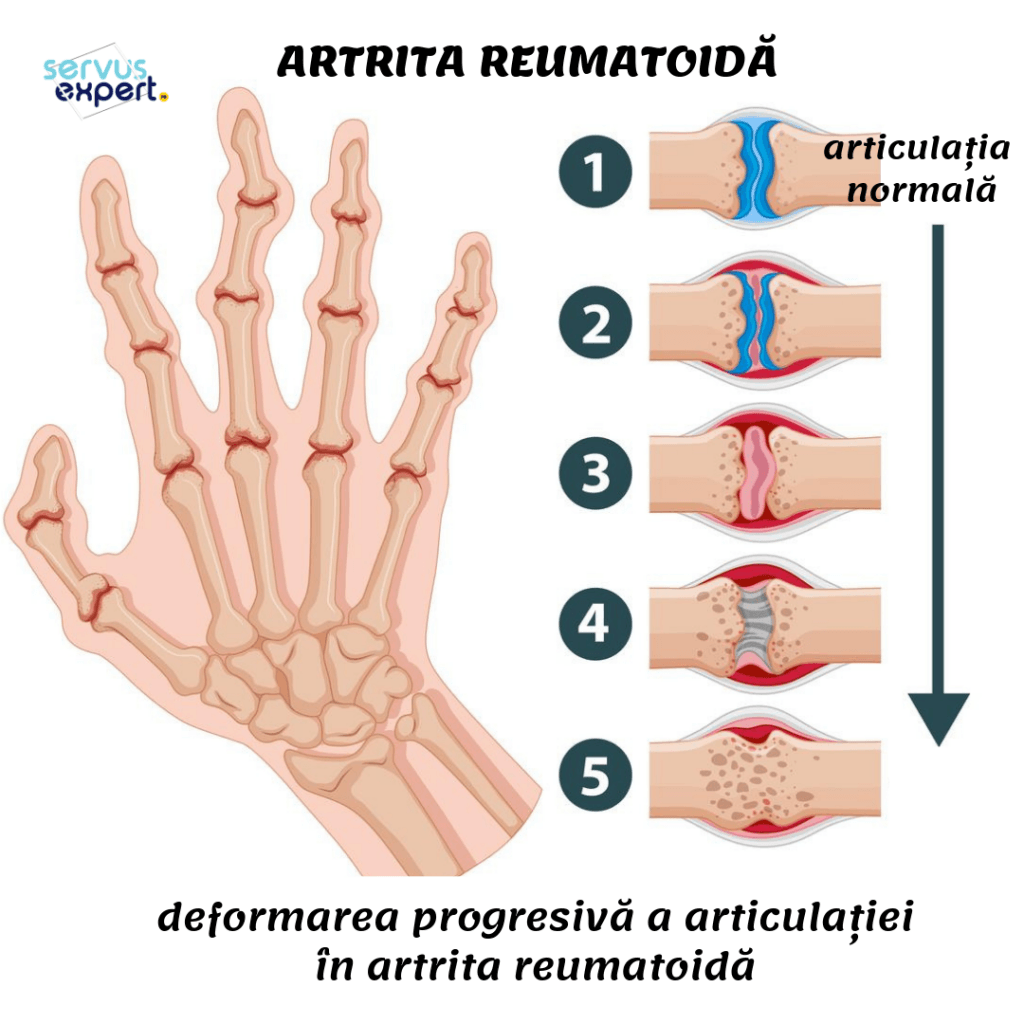 pannus în articulațiile cu artrita reumatoidă este