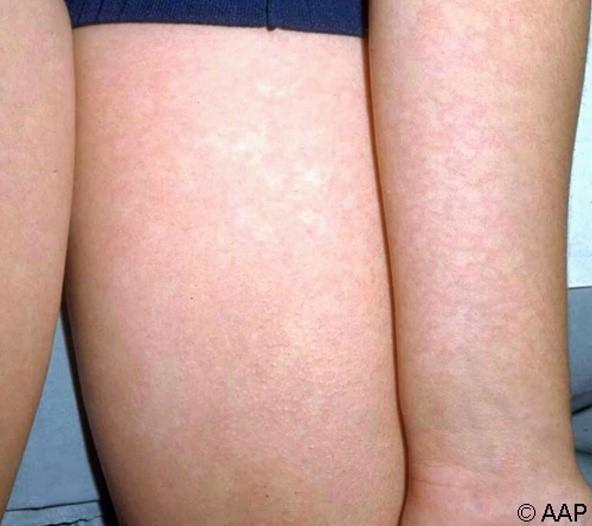 inflamație acută purulentă a articulațiilor care medicamente includ glucozamina și condroitina