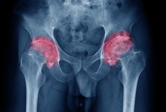 tratamentul coxartrozei sau artrozei articulației șoldului