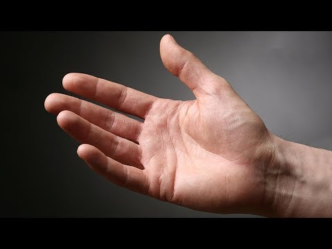 refacerea țesutului osos al articulației șoldului semne și tratament al artritei articulației șoldului