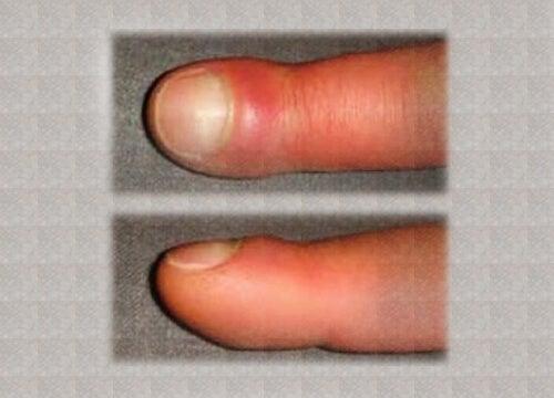umflarea mâinii umflate boli articulare specifice și nespecifice