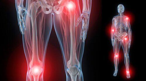 bursită suprapatelară a simptomelor și tratamentului genunchiului gimnastică pentru durere în articulațiile mâinilor