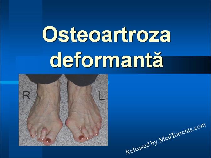 patogeneza artrozei deformante a genunchiului medicamente pentru construcția cartilajelor