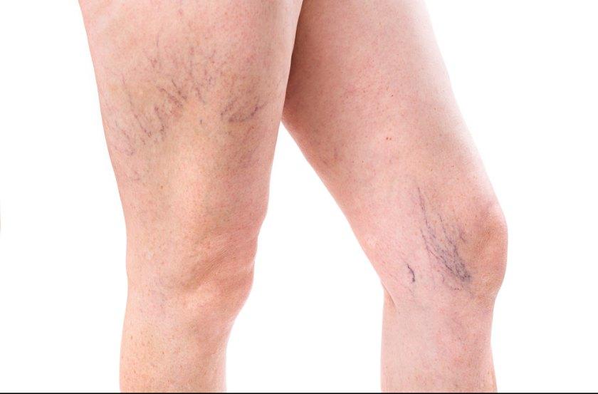 Evfaja: Durerea la picioare - 14 cauze posibile Cauze pentru varice