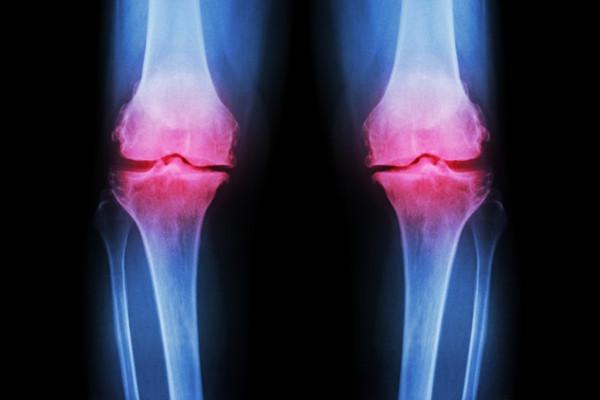 artroza de genunchi bilateral de grad 2 numele medicamentelor pentru dureri articulare