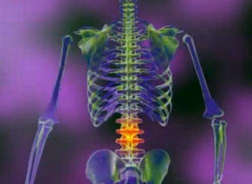 artroza articulațiilor coloanei vertebrale cervicale