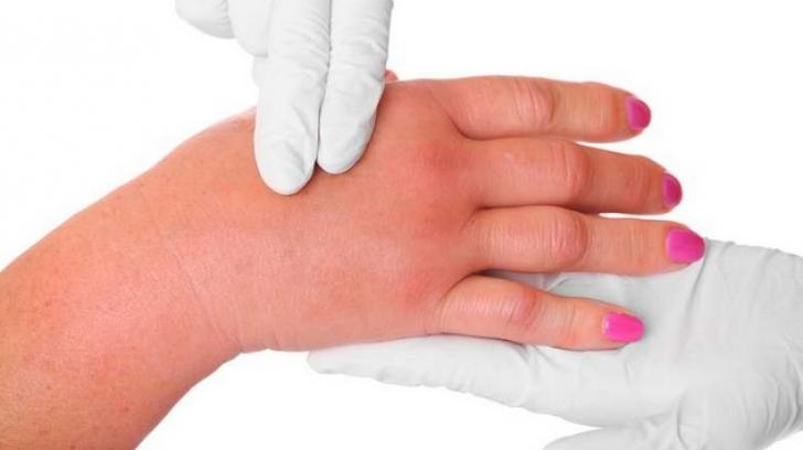 umflarea mâinii umflate tratamentul modern al artrozei și artritei
