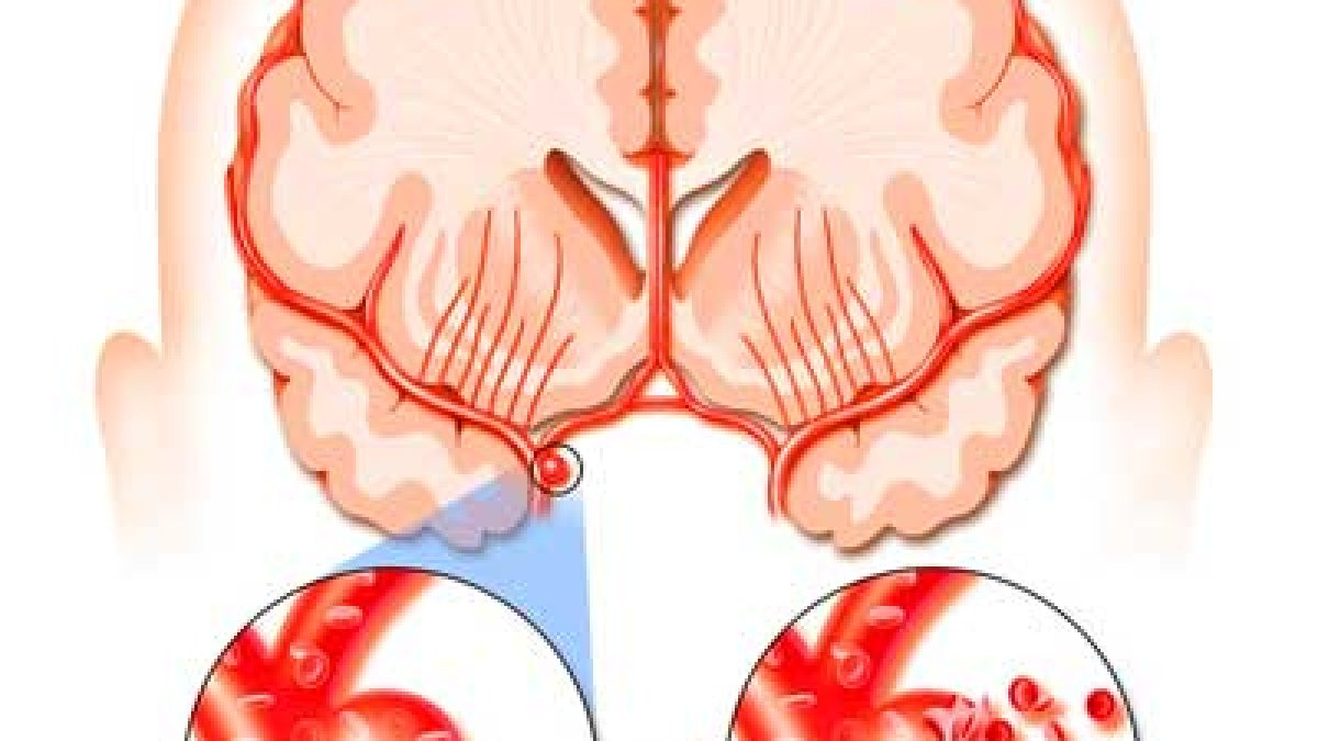 dureri de șold după accident vascular cerebral