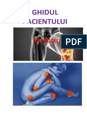 compoziția artrozei condroitinei dureri articulare severe cu oncologie
