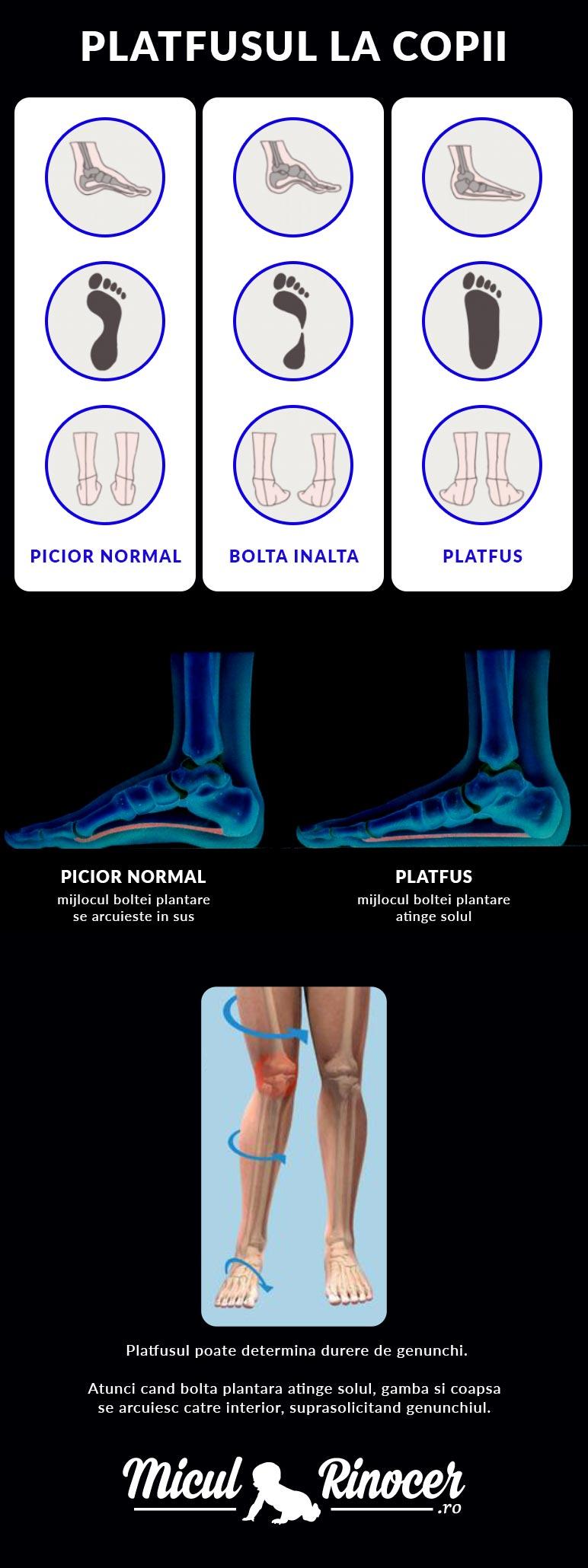 durere în articulația piciorului la copii