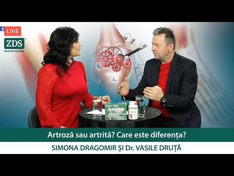 Artroza – ce este, tratament si simptome | CENTROKINETIC Tratamentul artrozei în kaluga