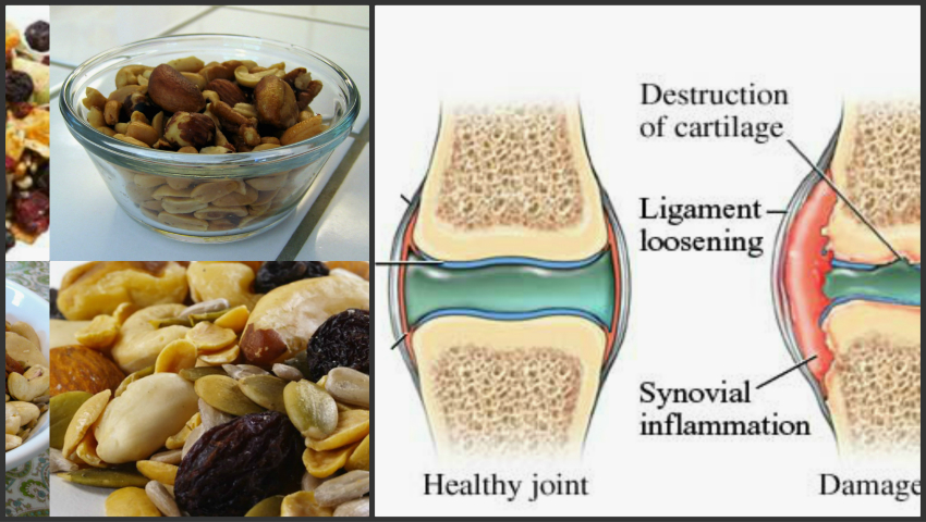 dureri articulare din stanozolol