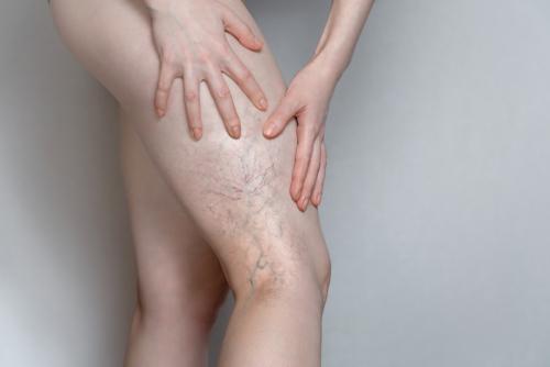 cum să tratezi articulațiile umflate la purcei