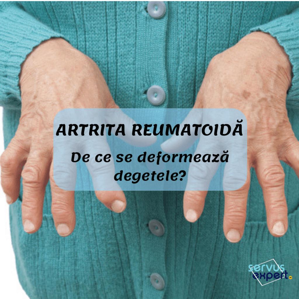 artrita reumatoidă pe degete mi-au rănit articulațiile 40