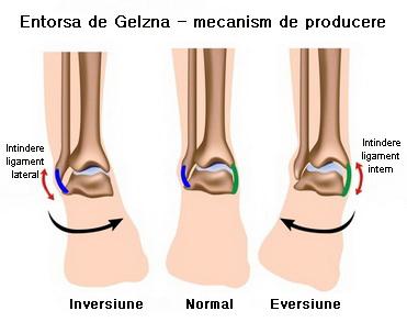 deteriorarea ligamentelor colaterale ale articulației genunchiului