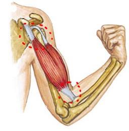 ruperea manșetei de rotație a tratamentului articulației umărului