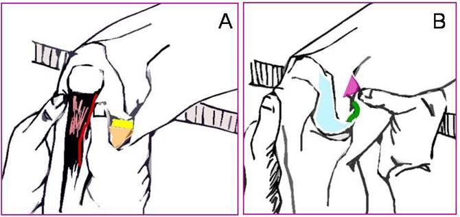 crize de genunchi și dureri articulare boala articulației tiroidiene