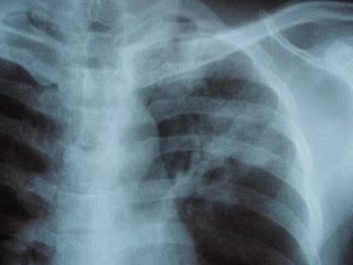 deteriorarea radiografiei articulației încheieturii