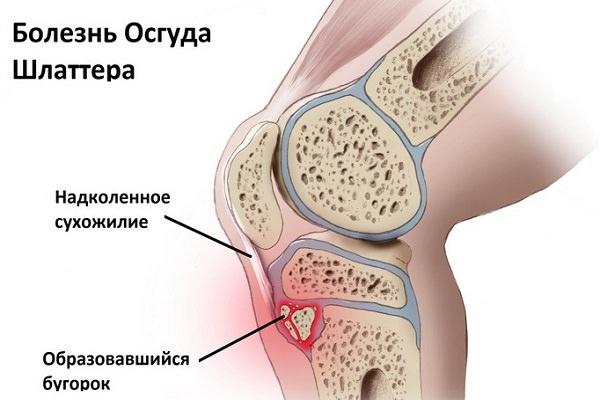 boala articulară la sportivi cum să tratezi articulațiile cu hamei