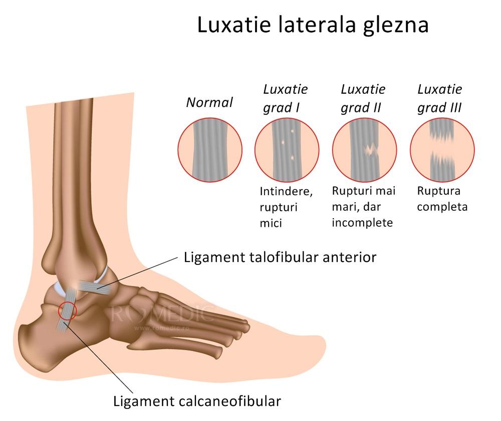 leziuni ale ligamentelor gleznei