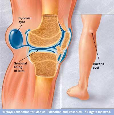 inflamația genunchiului piciorului