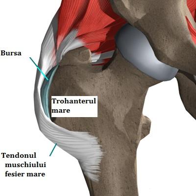 bursita cronică a tratamentului articulației șoldului când te ridici la nivelul articulațiilor