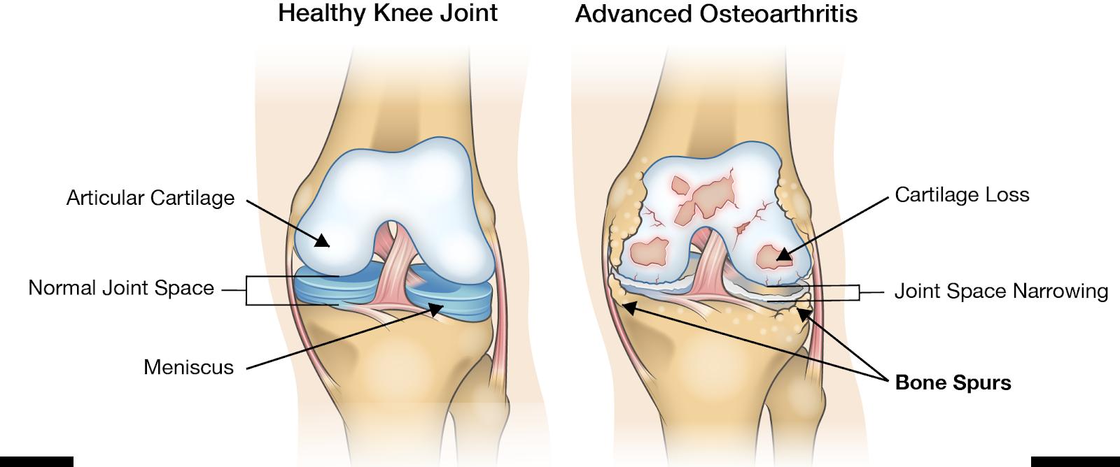 este util mersul pentru artroza genunchiului cauza durerii articulare la degete