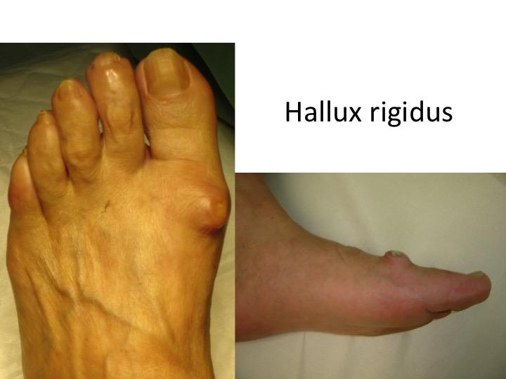 tratamentul artrozei articulațiilor piciorului tratamentul ligamentelor sfâșiate ale gleznei