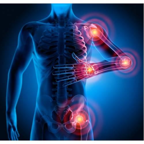 artroza și tratamentul la rece dureri articulare severe mâna dreaptă