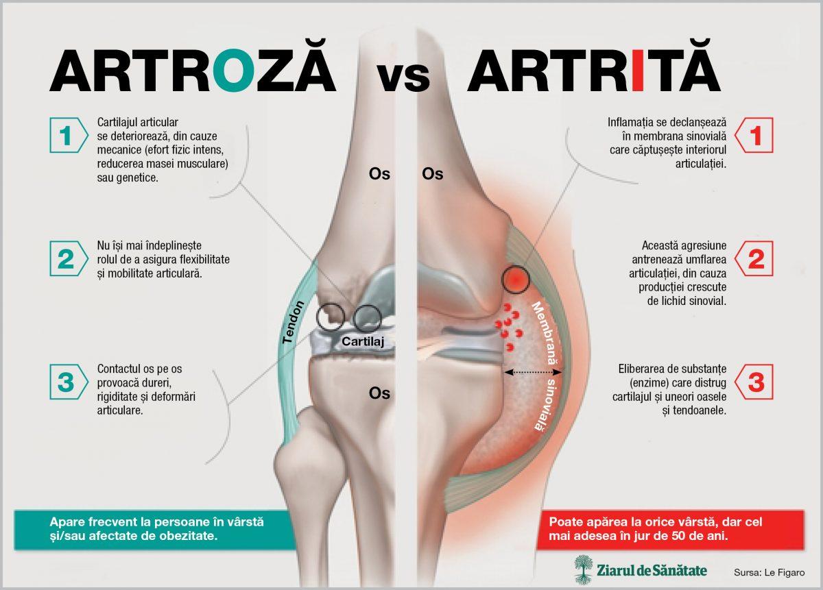 artrita și artroza care tratează ce examinare pentru durerea articulației umărului