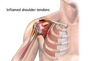 tratamentul unei articulații umăr inflamate