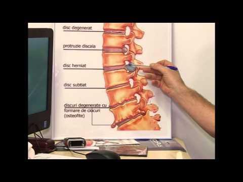 cum se simplifică durerea articulară operații de tratament cu artroză