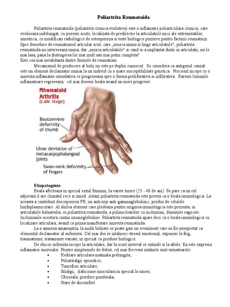 apă minerală pentru poliartrita reumatoidă a articulațiilor
