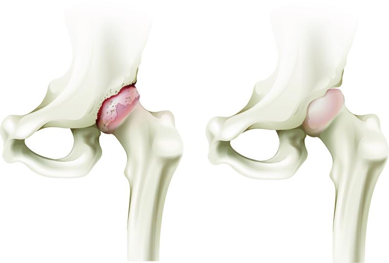Aparat pentru tratarea artrozei articulației șoldului