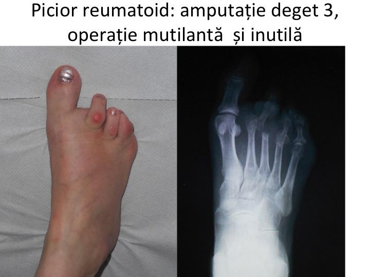 articulația artritei pe bontul piciorului Medicină comună Doca