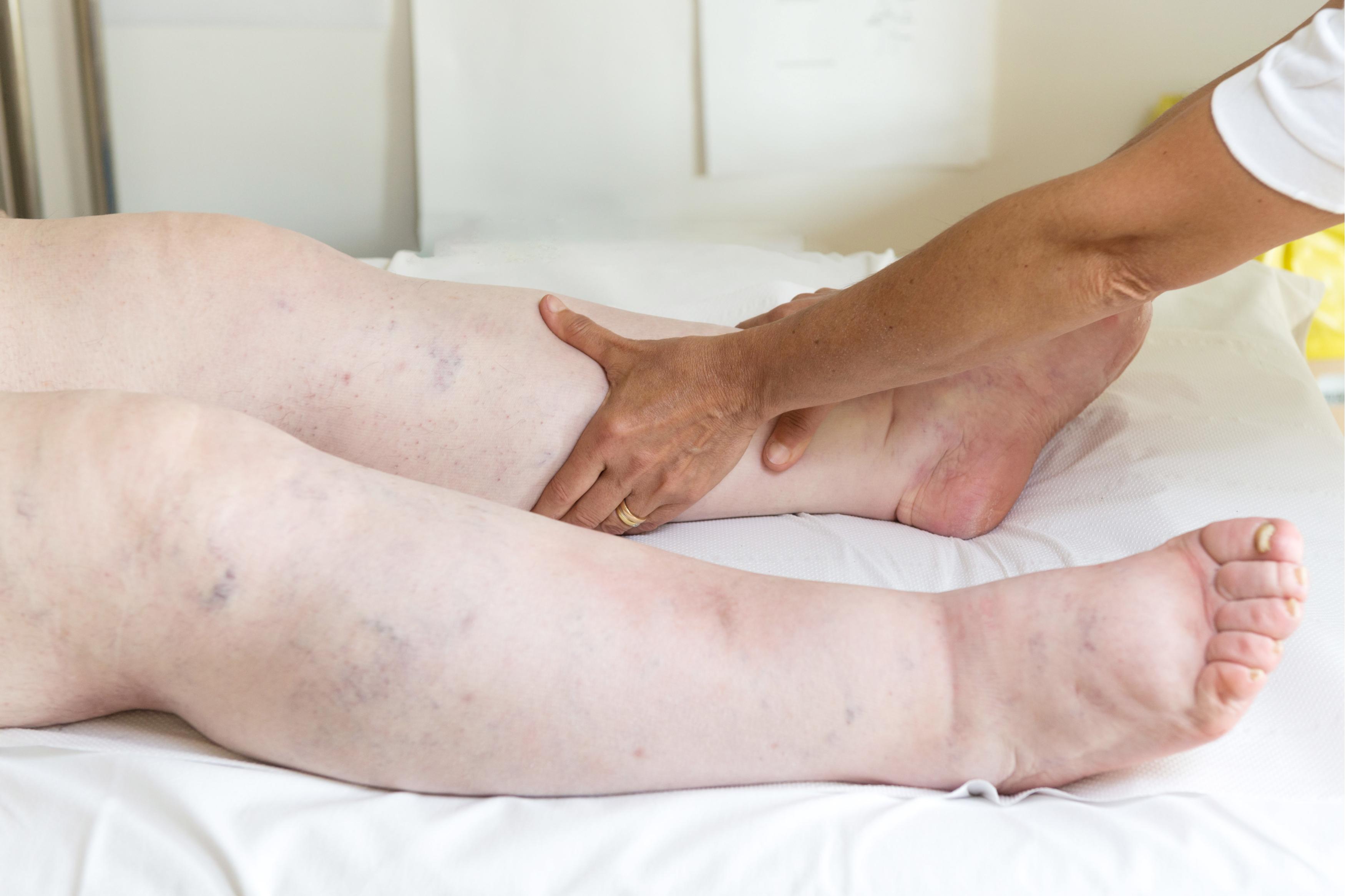 unguente pentru tratamentul artrozei deformante
