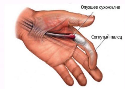 articulație bolnavă pe tratamentul degetelor