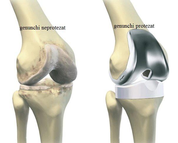 acupunctura pentru durerea articulației genunchiului curs de artroză a articulației șoldului