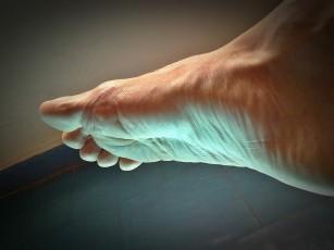 articulațiile conice în picioare, rănite de nervi