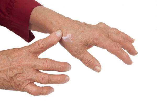 articulațiile mâinii sunt dureroase și lărgite